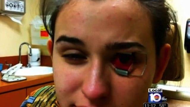 Photo of Lenti a contatto sporche, 18enne rischia la cecità – VIDEO