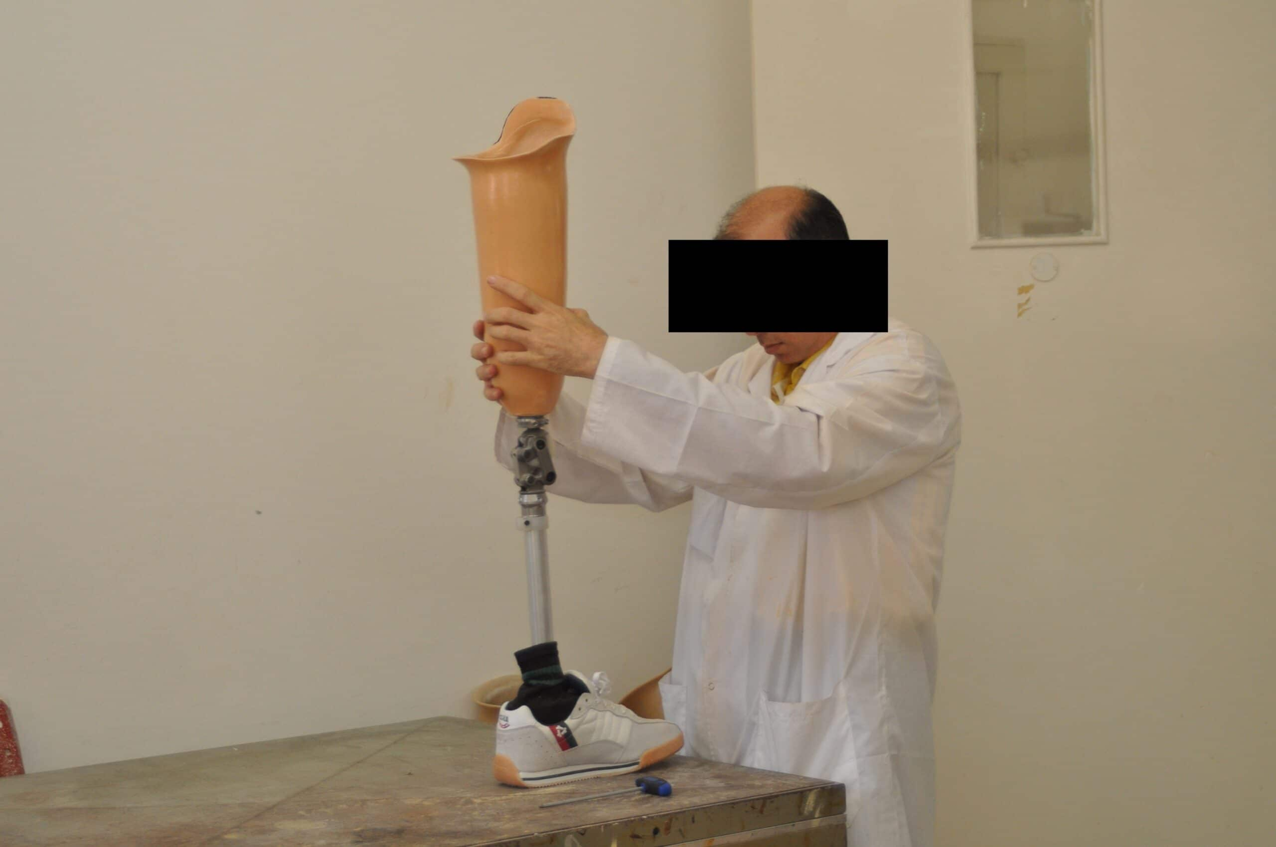 protesi alla gamba