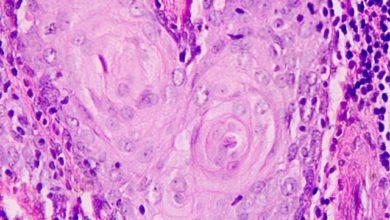 Photo of A Capannori il convegno sui tumori delle ghiandole salivari il prossimo 5 maggio